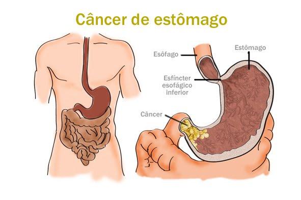Câncer no estômago