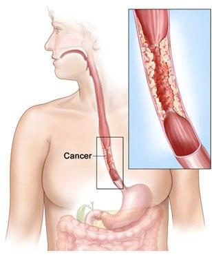 Câncer no esôfago